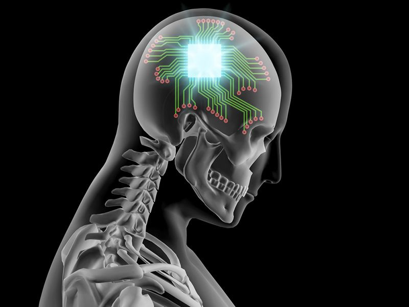 brain technology implant future timeline 2016