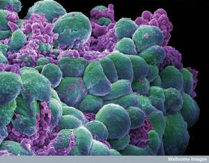 http://www.digitaljournal.com/img/3/1/6/7/3/3/i/1/5/3/p-medium/cancer_cells.jpg
