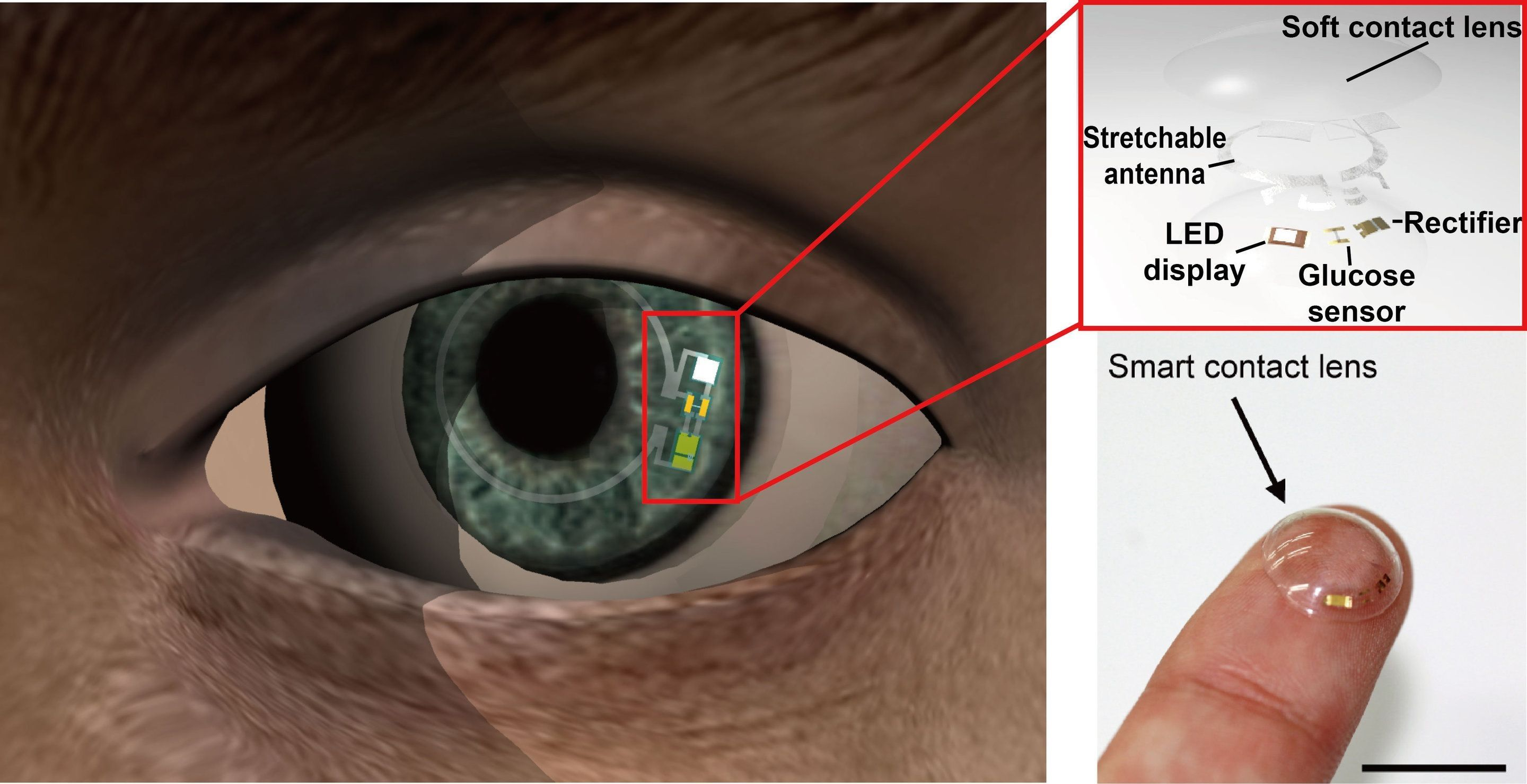 essay about contact lenses Home » google lens essay examples & outline google lens essay examples & outline are you in high school, college,  all in all, this contact lens is a major milestone and is set to help the millions of diabetic patients in the world references cunningham, david d, and julie a stenken in vivo glucose sensing.