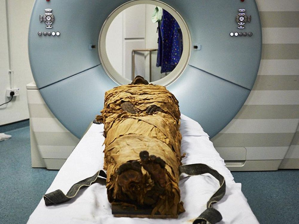 The mummified body of Nesyamun about to be CT scanned at Leeds General Infirmary