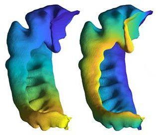 hippocampus_inset.jpg