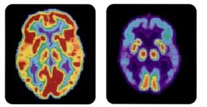 PET_scan-normal_brain-alzheimers_disease_brain-banner