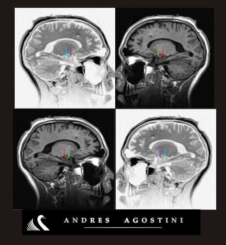 0 brainy