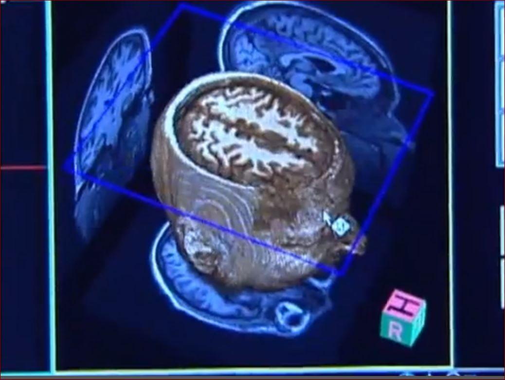 mini_brain