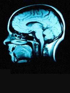 brainimage