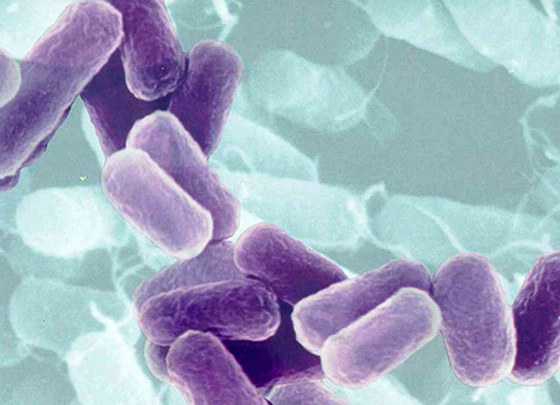 http://lifeboat.com/images/bacteria.purple.jpg